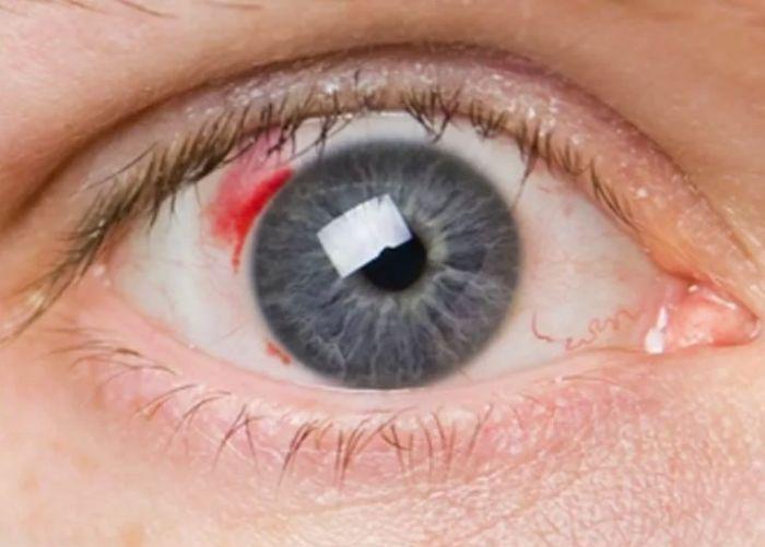 Диабетическая ретинопатия глаз