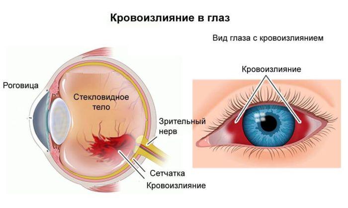 Кровоизлияние в сетчатку глаза