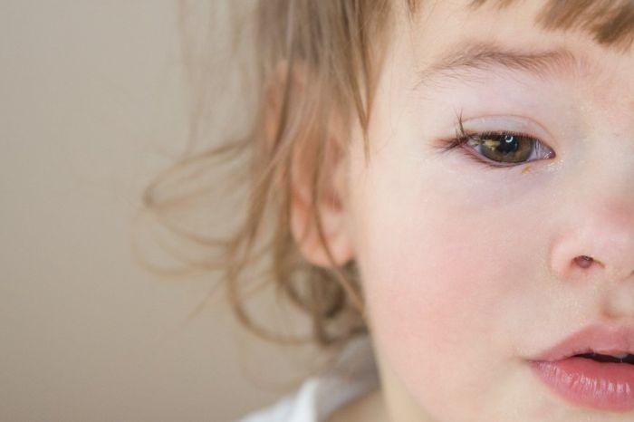 Заболевание глаз у ребенка