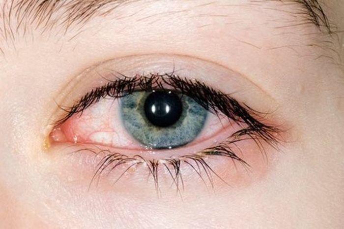 Глаз с коньюктивитом