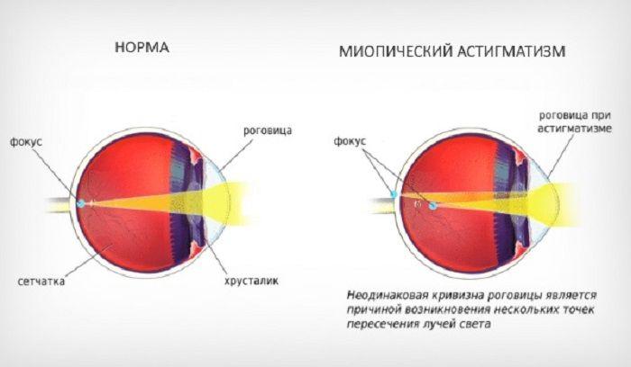 Глаз при астигматизме