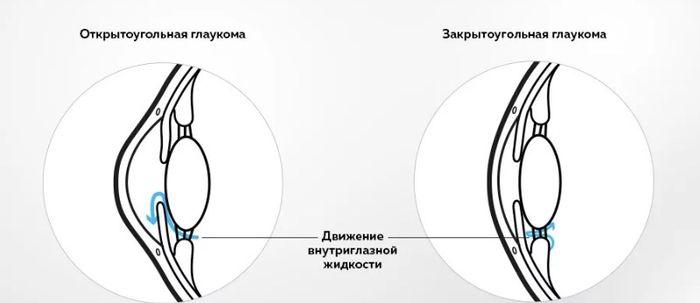 Открытоугольная форма глаукомы