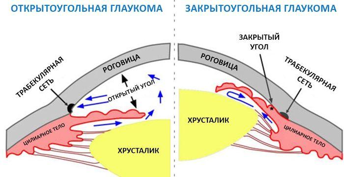 Хроническое заболевание глаз