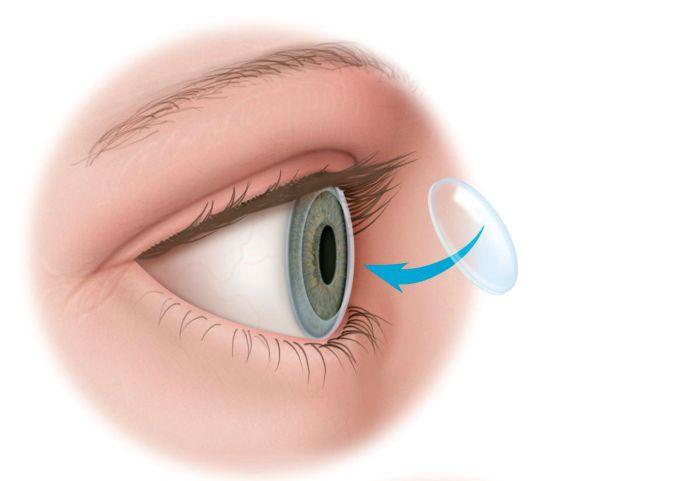 Операция на роговице глаза