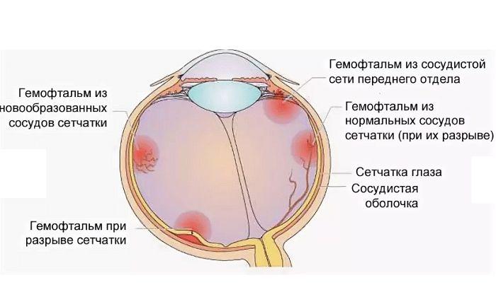 Гемофтальм стекловидного тела