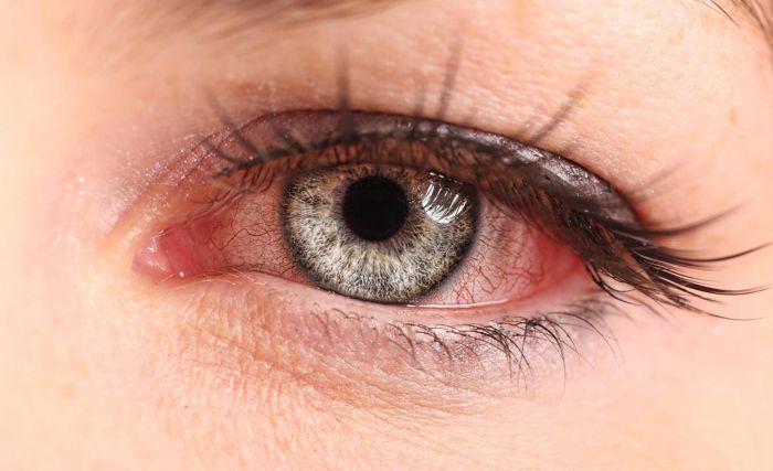 Пораженный глаз конъюнктивитом