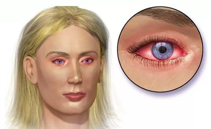 Пораженные глаза конъюнктивитом