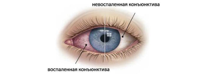 Болезнь глаза конъюнктивит