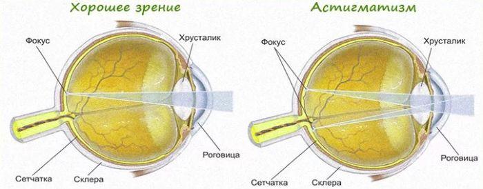 Схема астигматизм