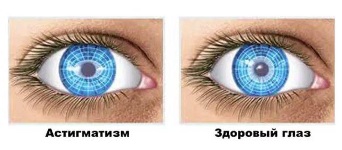 Здоровый глаз и глаз с астигматизмом