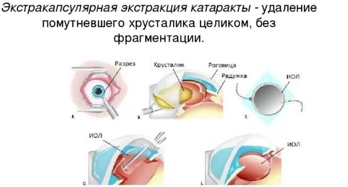 Экстракапсулярная экстракция катаракты