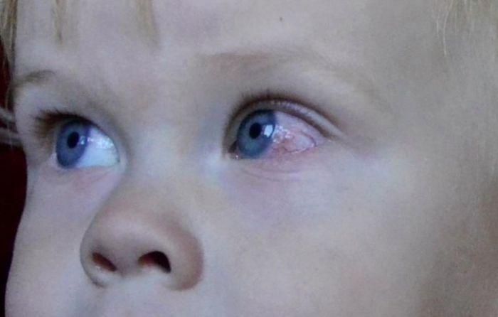 Покраснение склер у ребенка