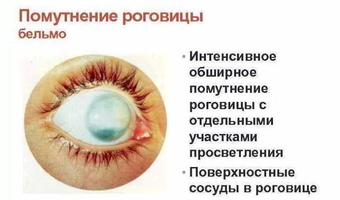 Бельмо - интенсивное помутнение роговицы