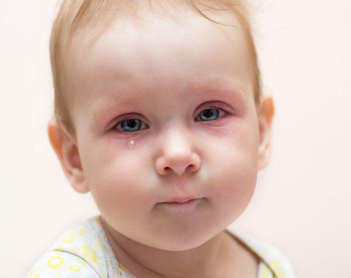 Красные глаза у маленького ребенка