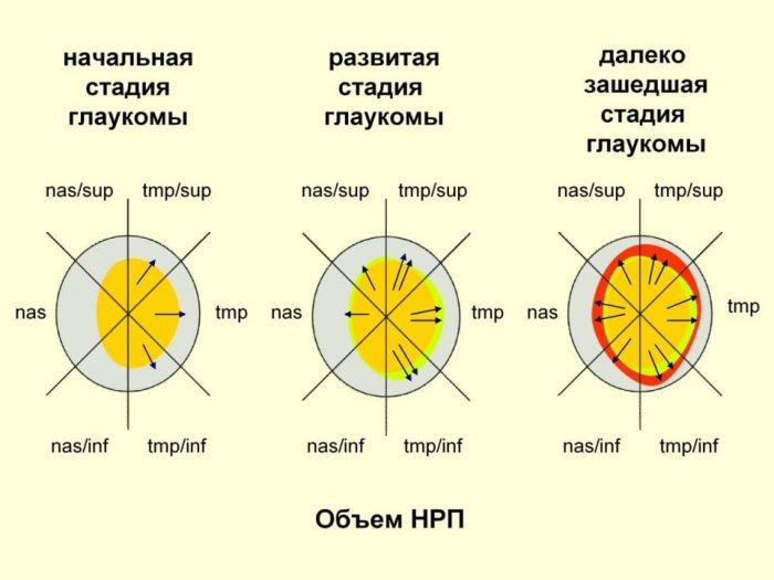 Глаукома стадии и степени объем НРП