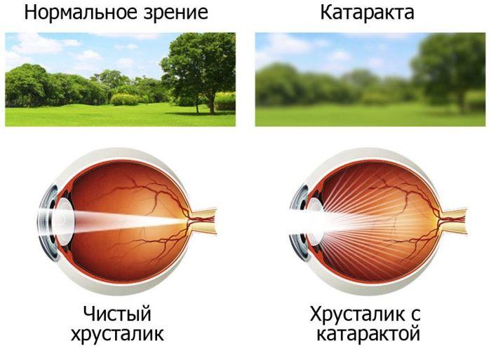 Зрение при катаракте