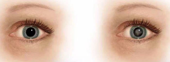 Развитие возрастной катаракты