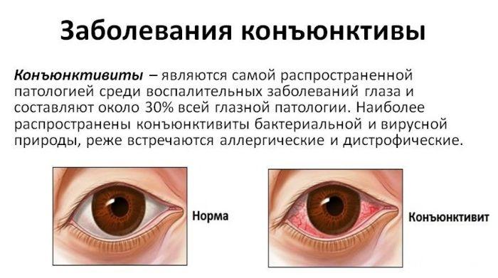 Заболевания конъюнктивы