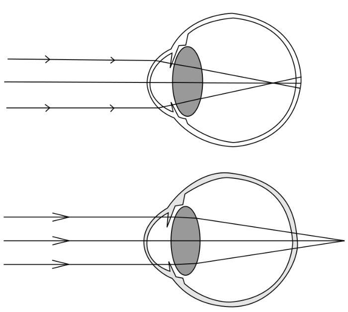 Близорукость схема глаза