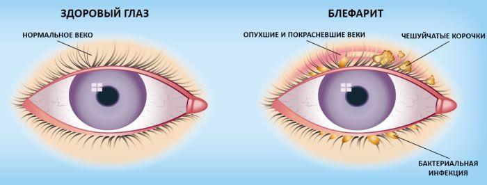 https://proglaza.net/lechenie/glaznye-kapli/ot-katarakty-i-glaukomy