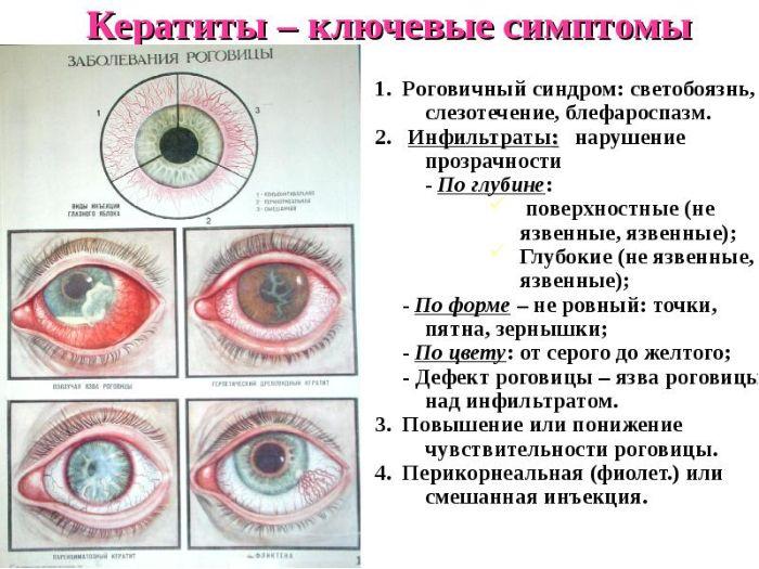 Развитие кератита и симптомы