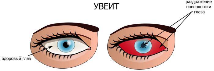 Увеит глаза
