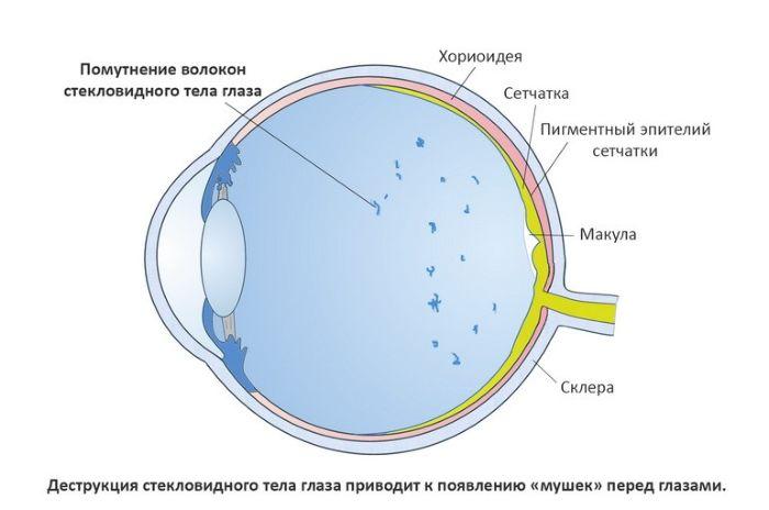Плавающие мушки в глазах