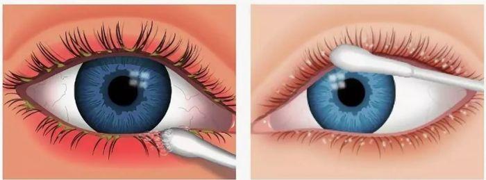 Вирусный коньюктивит глаз