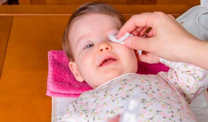 Очищение глаза ребенка ватным тампоном