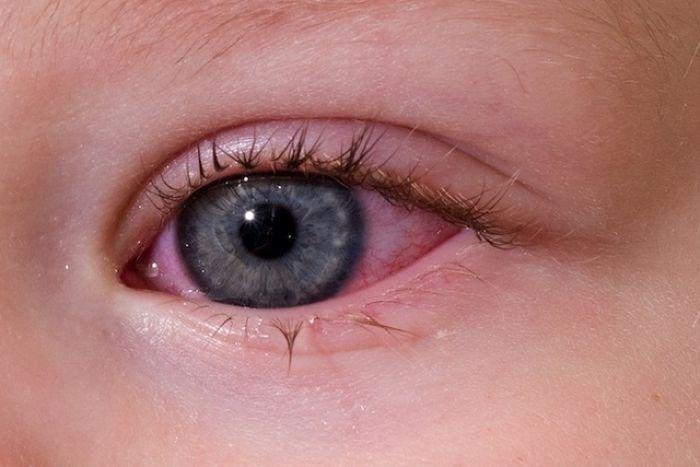 Покраснение глаза у маленького ребенка