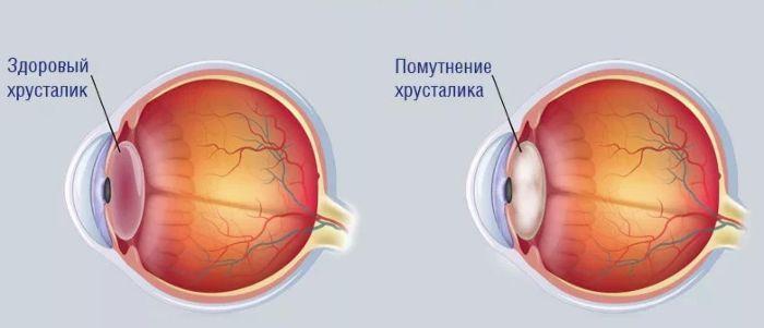 Хрусталик глаза с катарактой