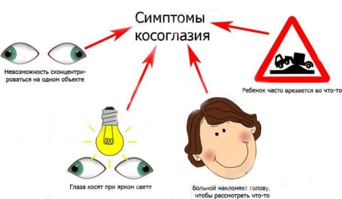 Симптомы косоглазия