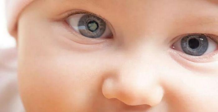 Глаз грудничка с катарактой