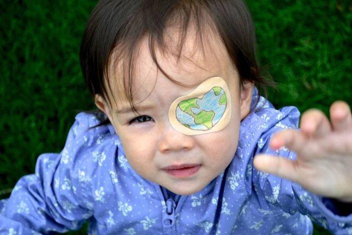 ребенок с повязкой на глазу после операции