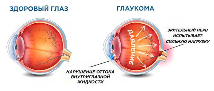 Глаукома рисунок
