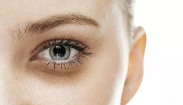 Синева под глазами