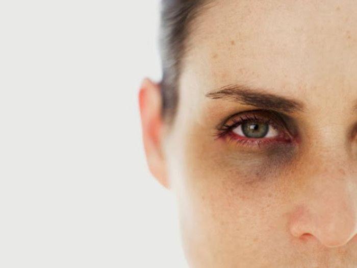Темные пятна под глазами