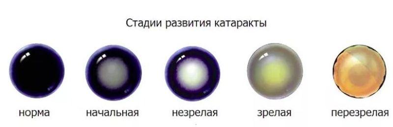 Стадии развития катаракты