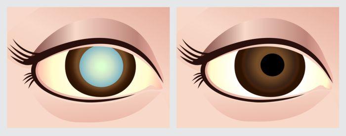 Глаз с катарактой рисунок