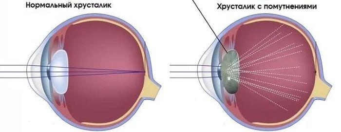 Помутнение хрусталика глаза при катаракте