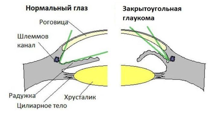 Патогенез закрытоугольной глаукомы