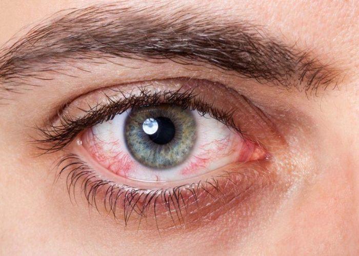 Красные склеры глаз