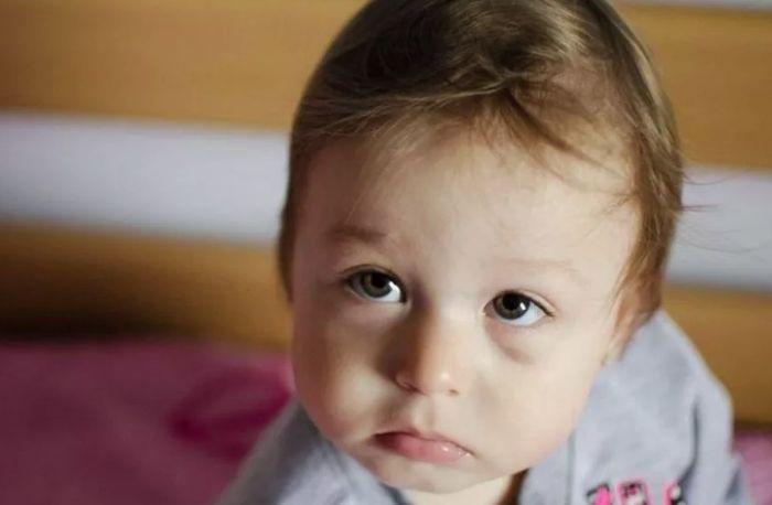 Синяк под глазом у малыша