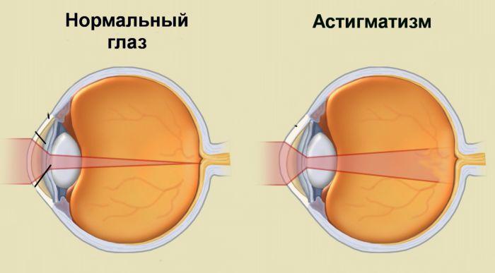 Астигматизм зрения