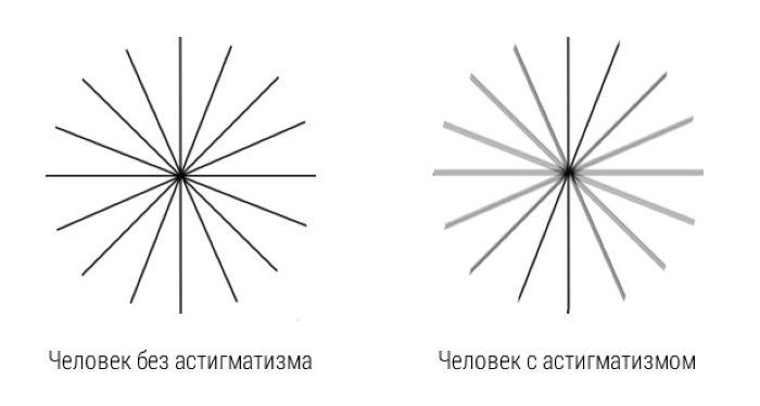 Изображение при астигматизме