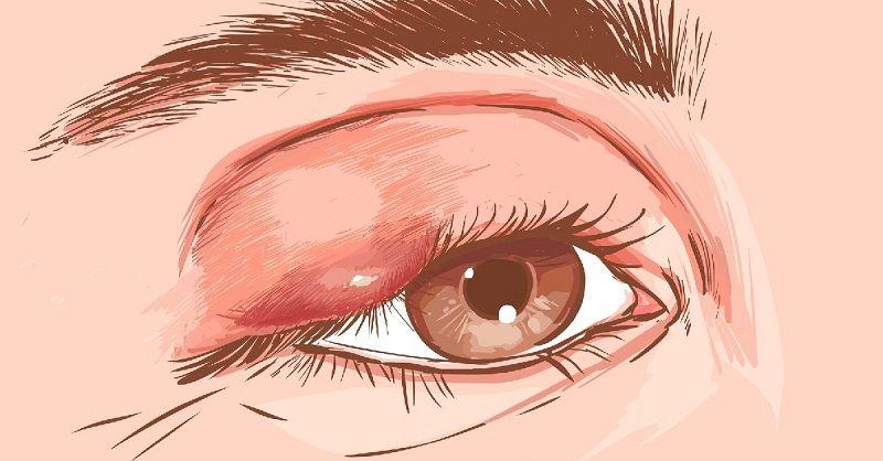 Халазион на глазу