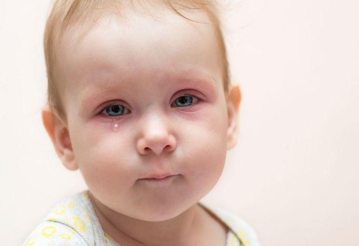 Воспаления глаз у детей