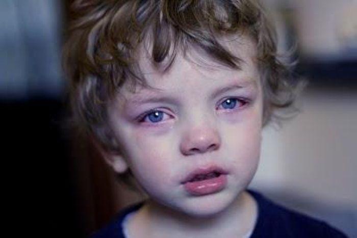 Дакриоцистит — глазное заболевание