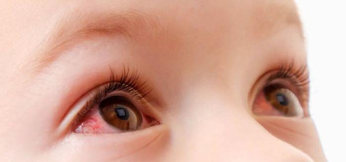 Аллергические реакции - покраснение глаз