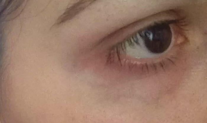 Вена под глазом
